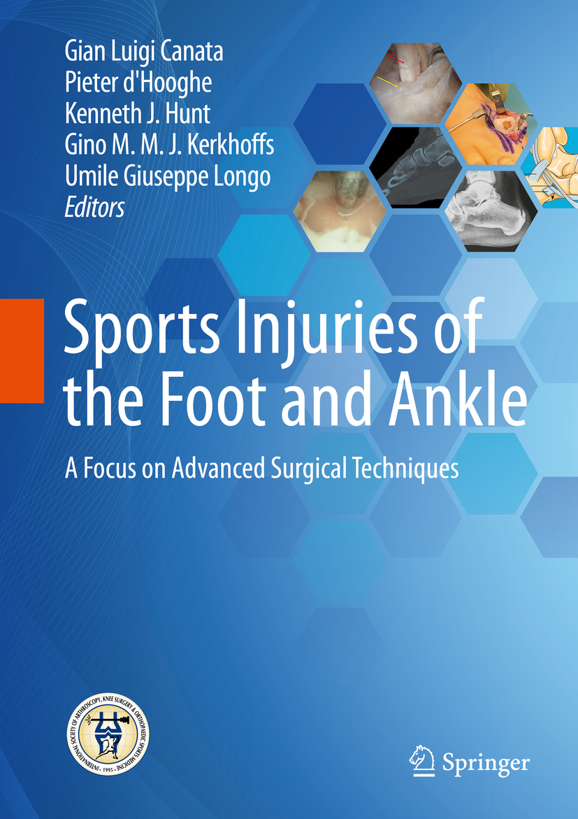 Sports Injuries of the Foot and Ankle